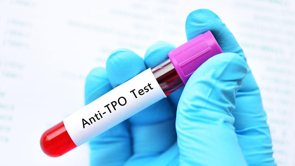 TPO & TGB Antibody Testing: Thyroid Treatment Success Secret #3